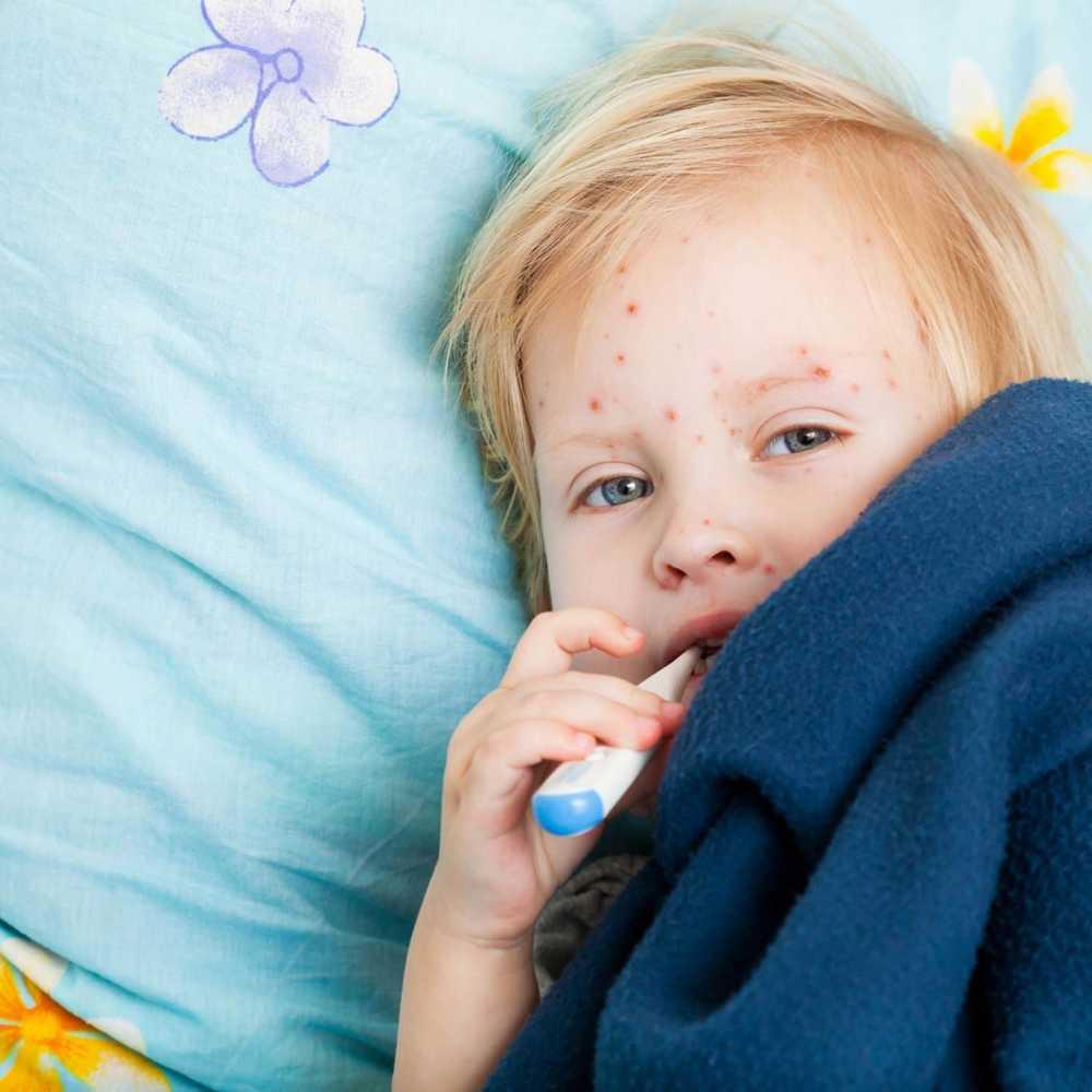 Как лечить ветрянку у детей в домашних условиях